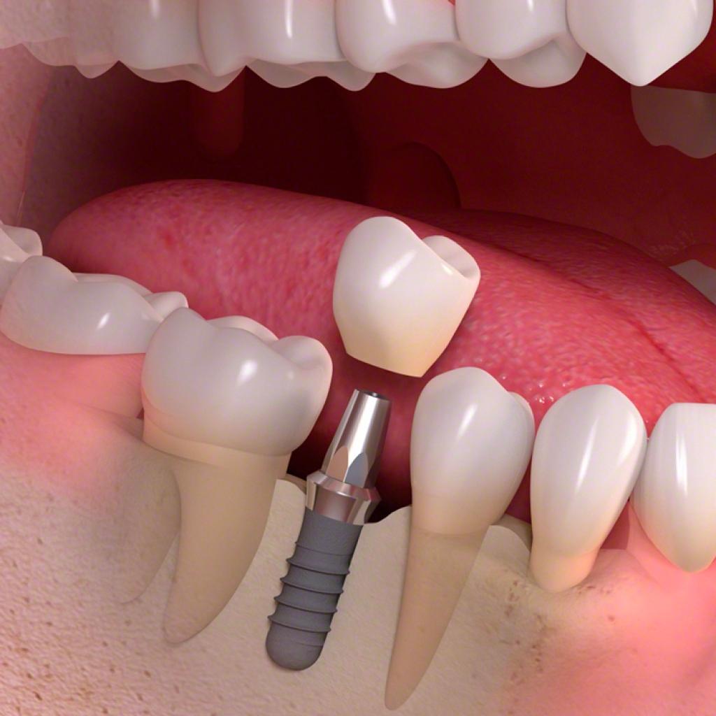 Имплантология (имплантация зубов)