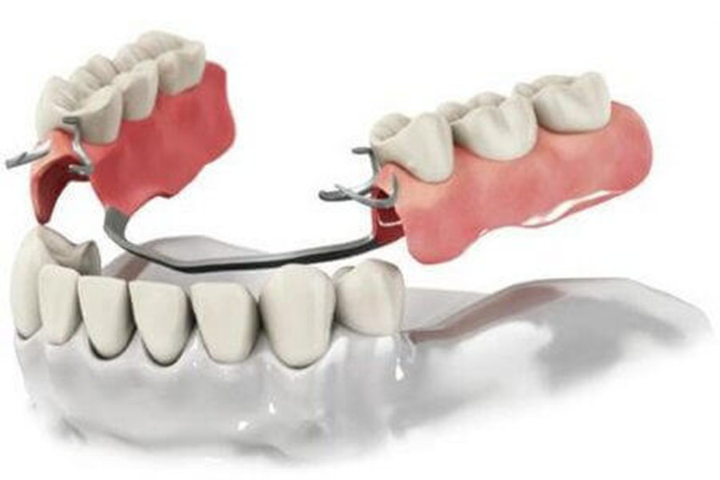 Протезирование зубов в Зеленограде виды и цены