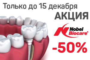 Скидка 50% на имплантаты премиум - класса Nobel Biocare!