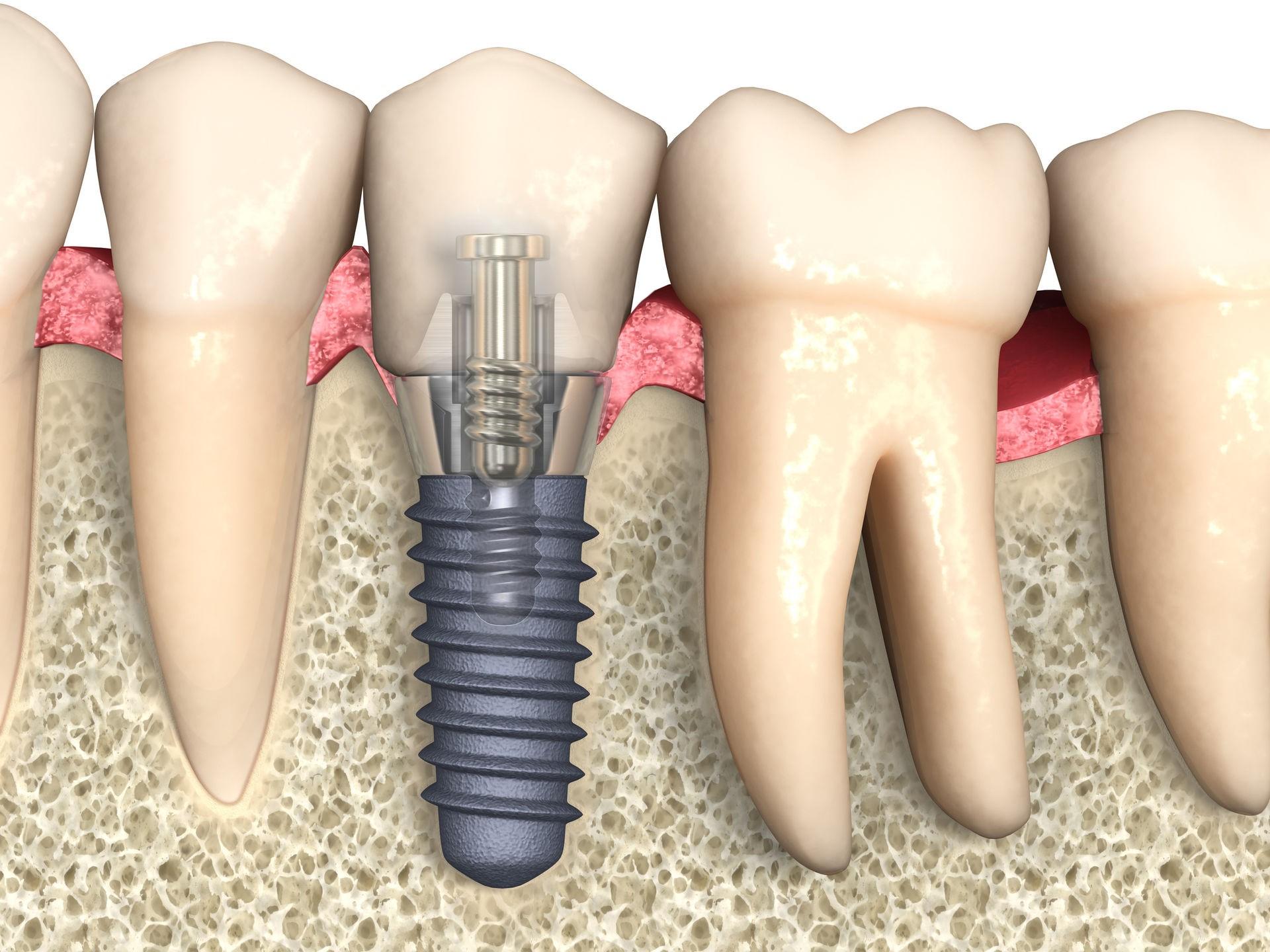 Через сколько ставят имплант после удаления зуба