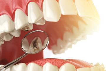 Почему зубы жёлтые