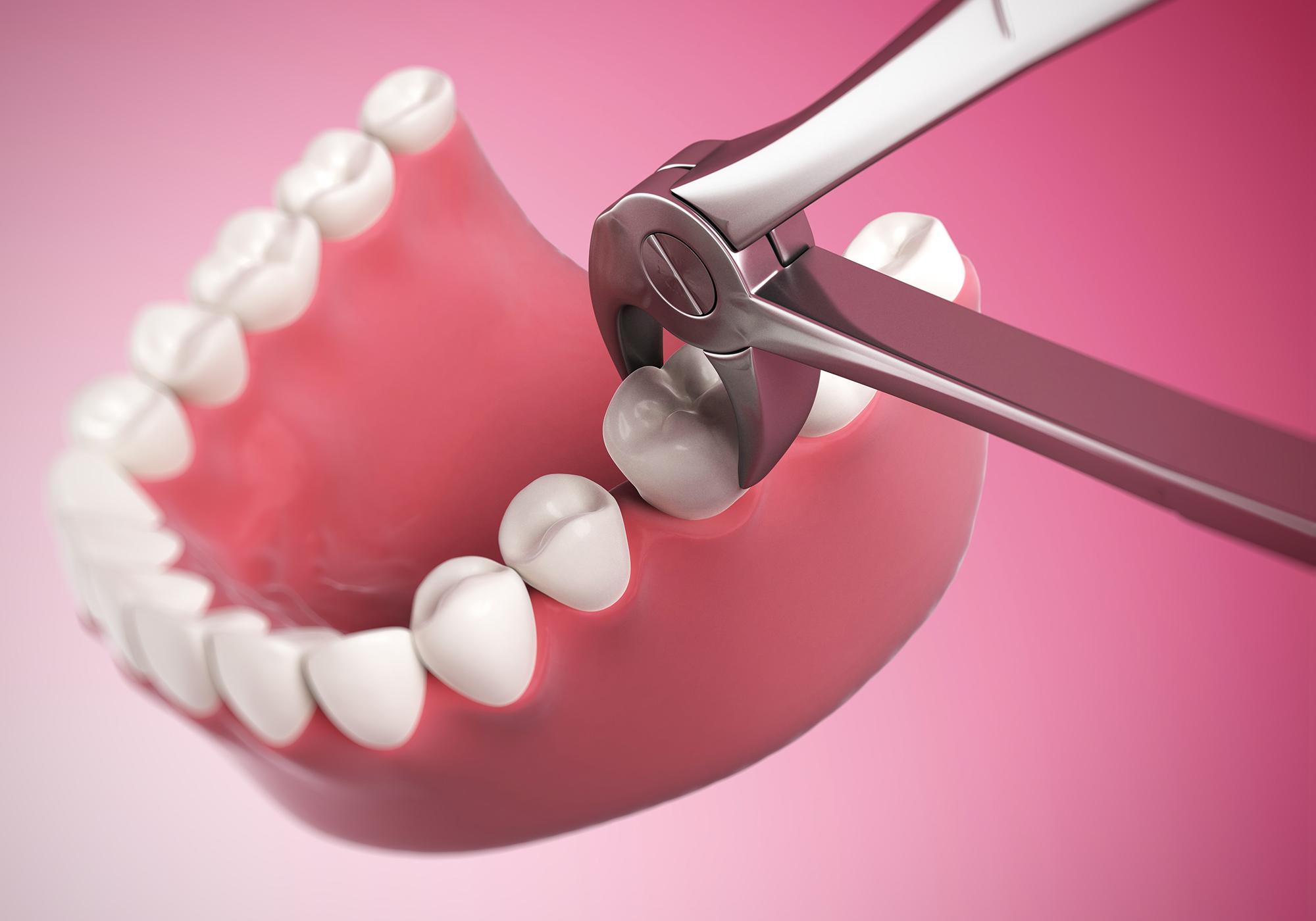Когда можно пить алкоголь после удаления зуба?