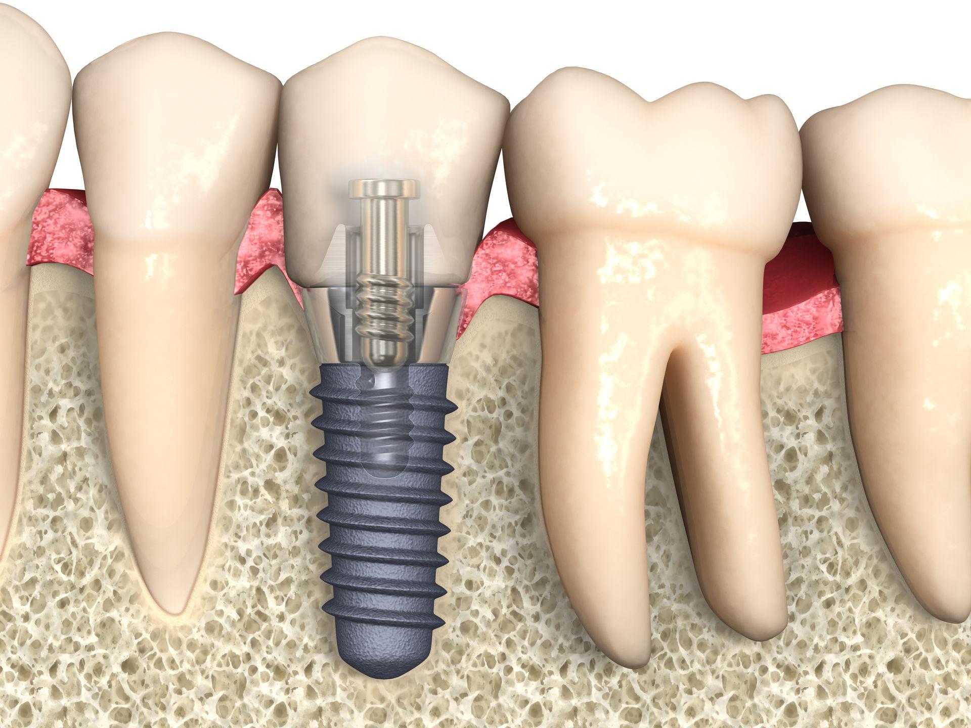 Больно ли ставить зубные импланты