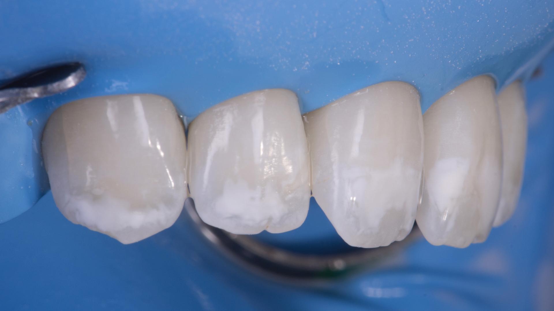 пример белых пятен на зубах