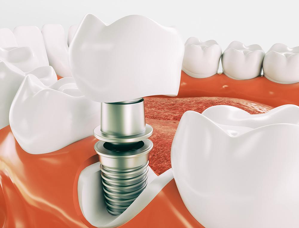 Можно ли пить алкоголь после имплантации зубов