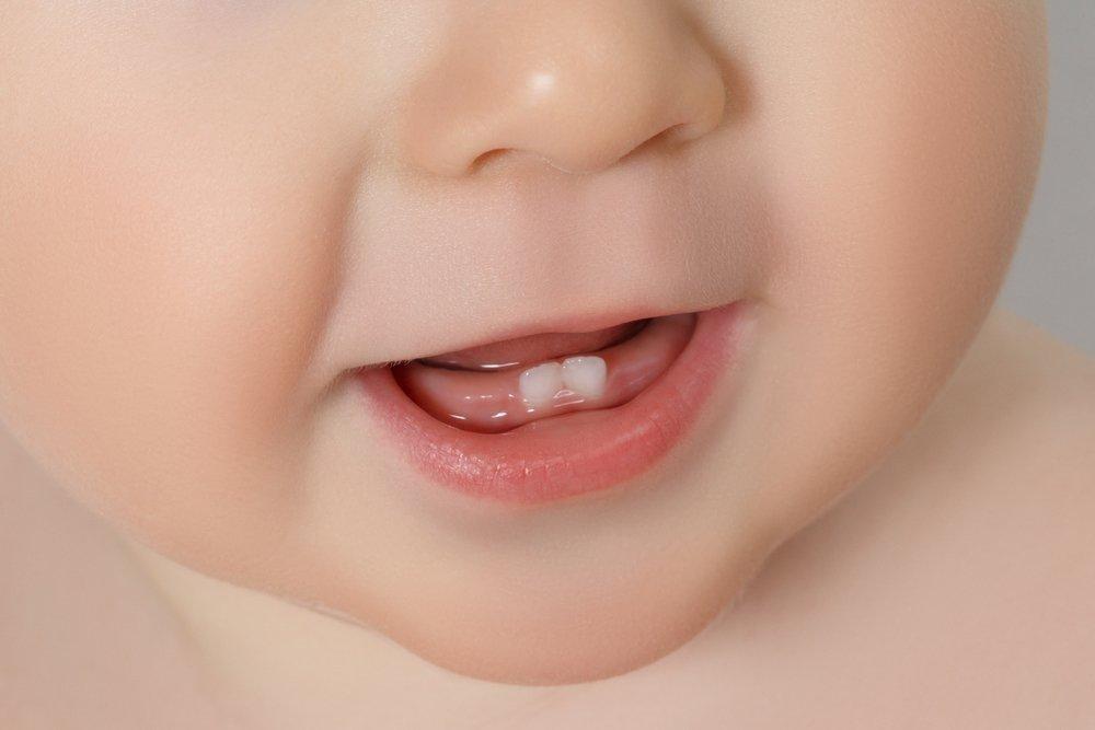 Опухшие дёсны у ребёнка